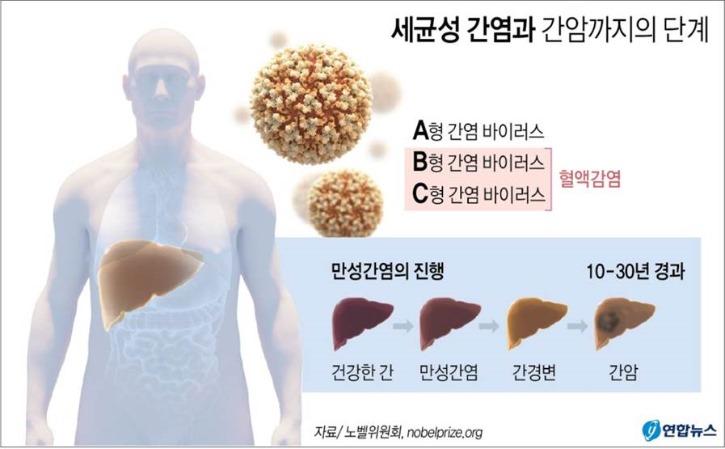 세균성 간염과 간암까지의 단계.jpg